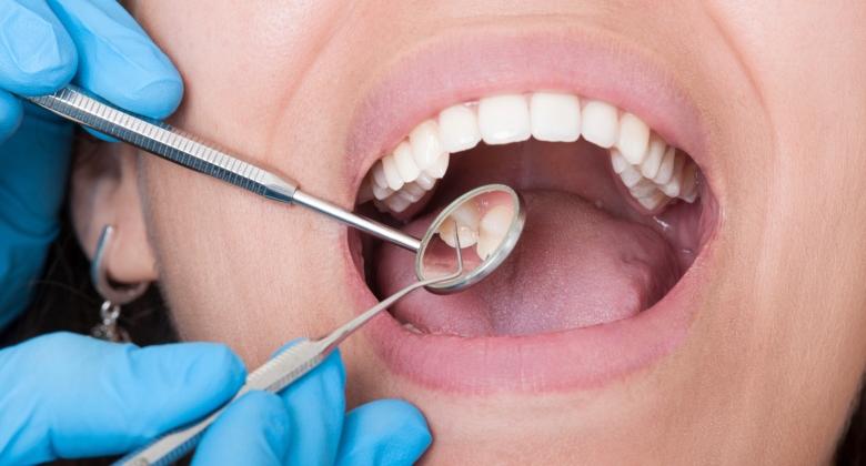 dentist, tools, mouth, teeth
